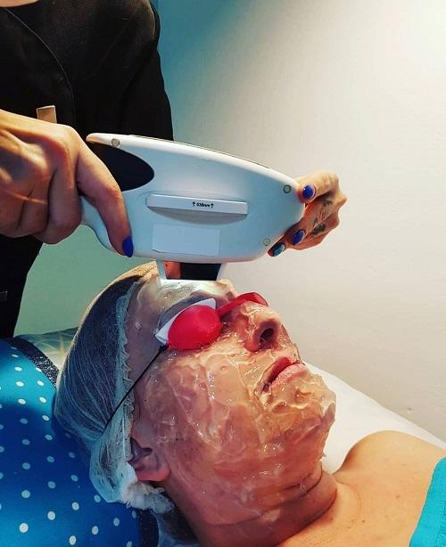 Tratamiento rejuvenecimiento facial láser