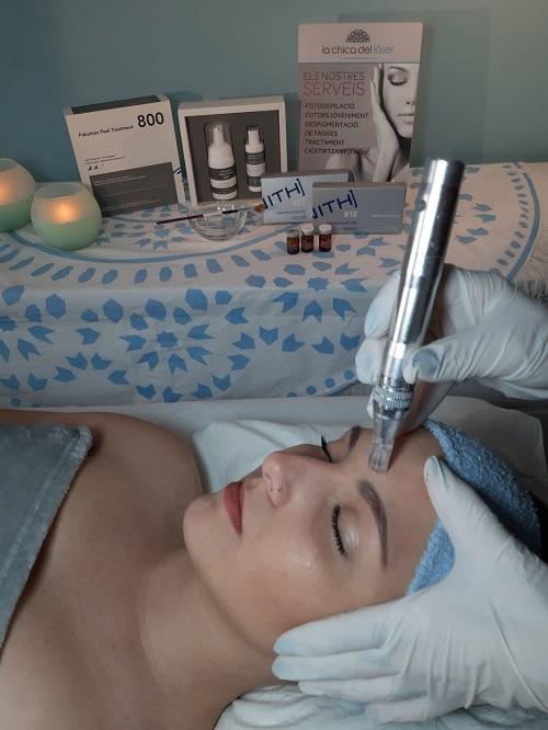 Tratamiento micropunción dermica